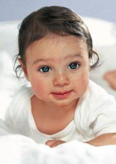 Аллергия у малыша на лице