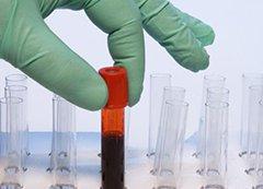 Биохим анализ крови