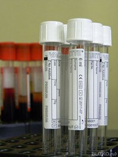 Анализ крови на паразитов у детей