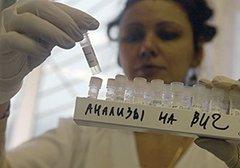 Повышен белок в моче при вич – ВИЧ и СПИД