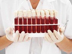 Сделать анализ крови
