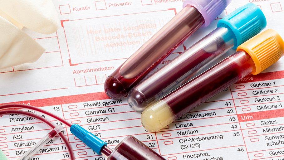 тест для ревматоидного артрита