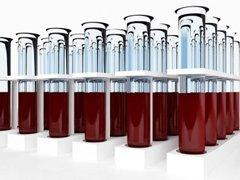 Анализ крови на АлАТ и АсАТ