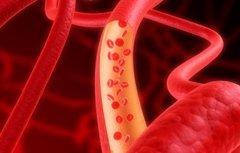 Общий анализ крови гемоглобин