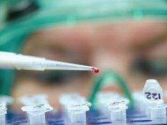 Положительный анализ на скрытую кровь