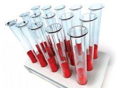 ИФА анализ крови