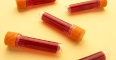Результаты анализов крови у детей