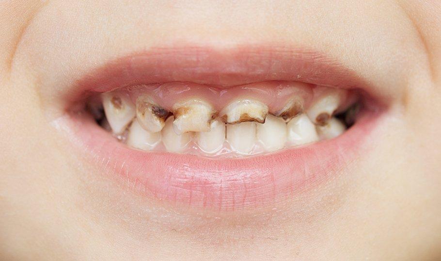 Пятна на зубах у ребенка