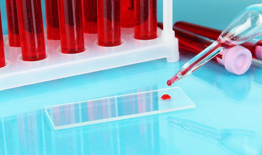 Свертываемость крови при беременности