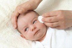 Гноятся глазки у новорожденного