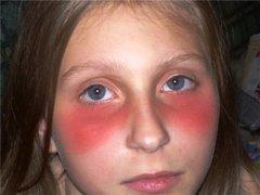 У ребёнка краснота под глазами фото