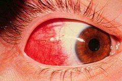 Почему краснеет белок в глазах