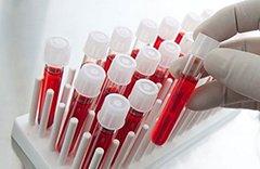 Анализ крови hbsag – что это такое и его расшифровка