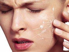 Сухость кожи тела