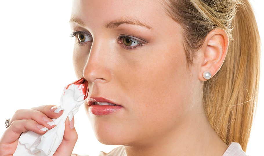 Почему с носа идет кровь вместе с соплями