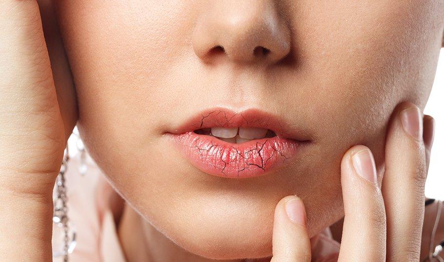Как можно обветрить губы